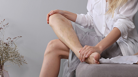 Woman with deep vein thrombosis rubbing her leg