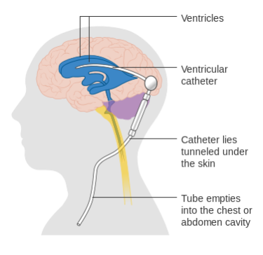 Diagram showing a brain shunt
