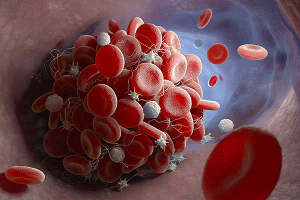 Illustration of red blood cells clotting together inside the human body