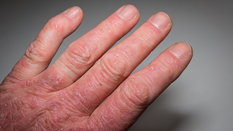 Closeup of a man's hand with arthritis