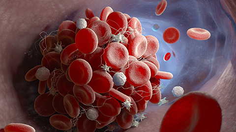 Red and white blood cells forming a clot inside an artery