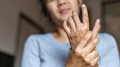 Woman with swollen joints holding a painful wrist