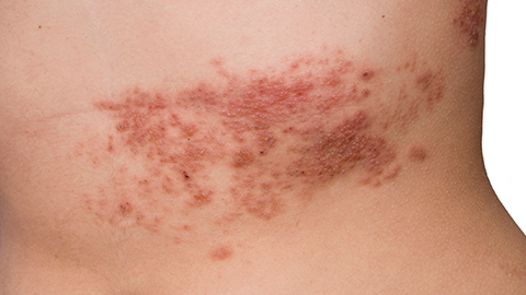 Red and bumpy shingles rash on a person's back