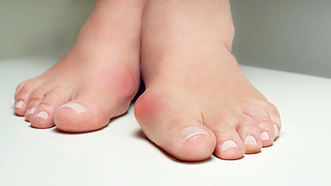 A woman's feet with bunions